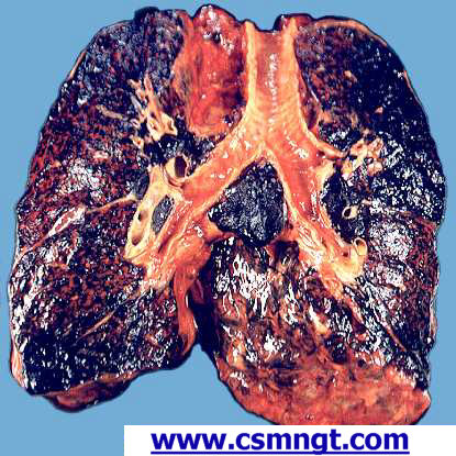 smoking lungs and healthy lungs. Smokers Beware: Torah Still In
